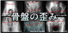 骨盤のゆがみイメージ